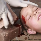 Head and neck injuries in children.
